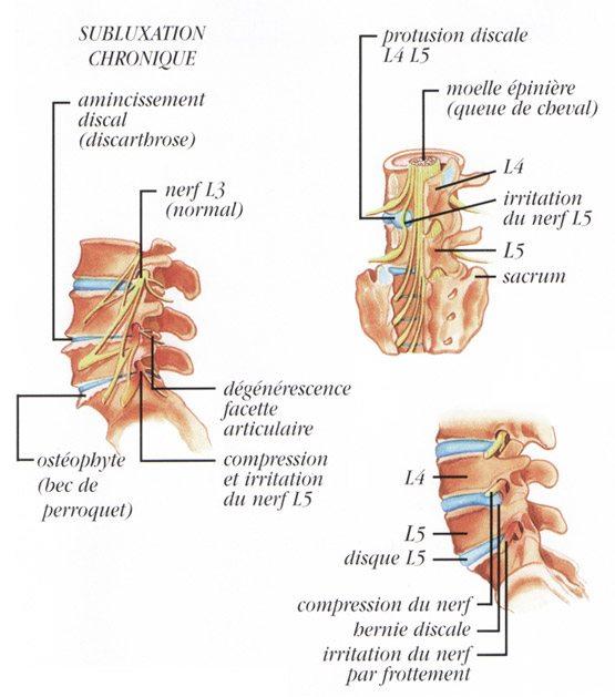 subluxation chronique