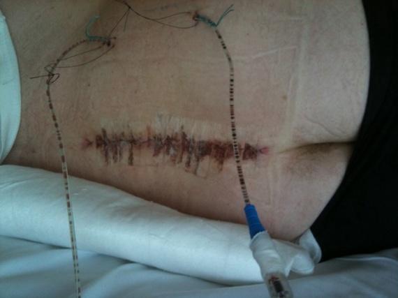 Cicatrice_avec_strips
