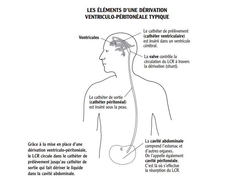 Dérivation ventriculo-péritonéale