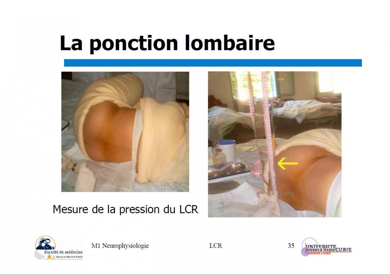 La ponction Lombaire b
