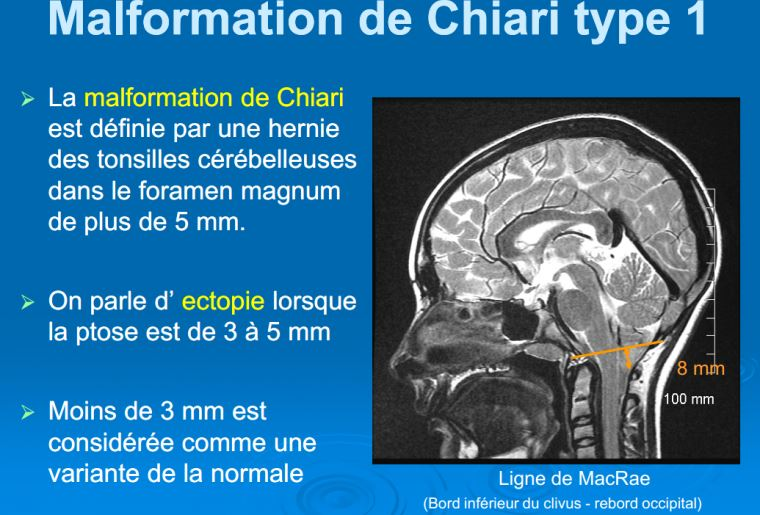 Malformation chiari type 1
