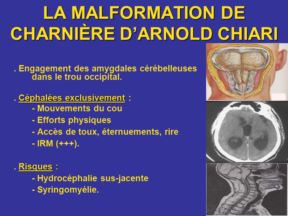 Malformation de CharnièreD'ARNOLD CHIARI
