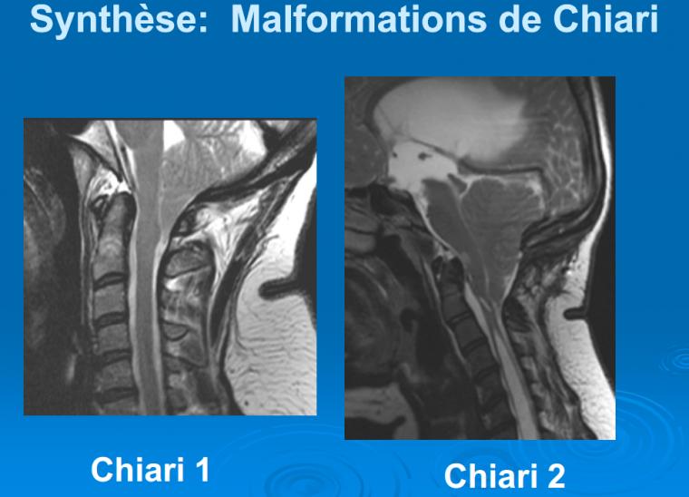 Malformations de Chiari