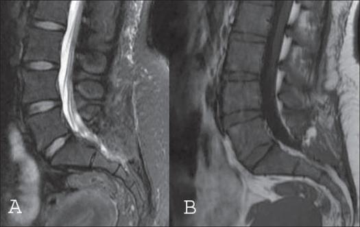 IRM post opératoire