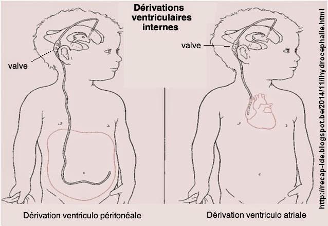 Ventriculo peritoneale ventriculo atriale
